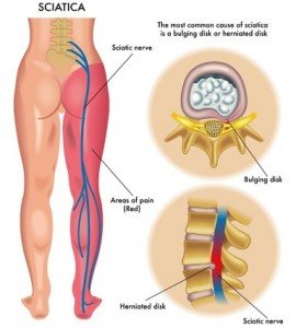 Sciatica from bulging disc - Eastside Chiropractic Group